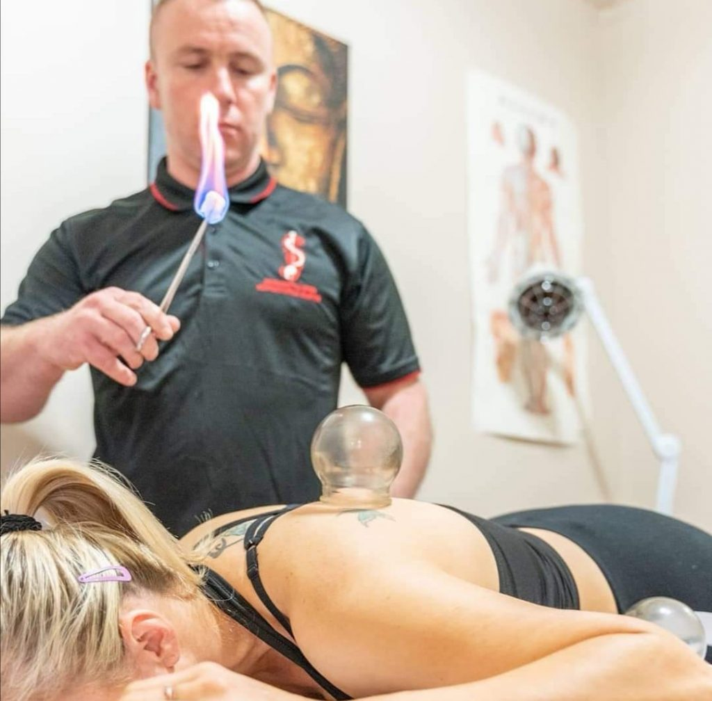 Cupping Therapy Dublin