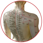 Acupuncture and Traditional Chinese Medicine Treatments